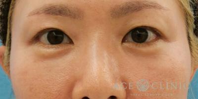 目の下のクマ・たるみ取り 脱脂CRF法の症例写真[アフター]