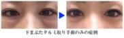 クリニーク大阪心斎橋 ❘ 梅田スカイナイトクリニックの症例写真