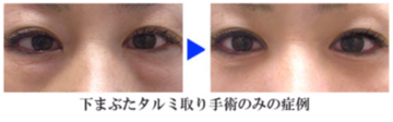 クリニーク大阪心斎橋 ❘ 梅田スカイナイトクリニックの目元の整形、くま治療の症例写真