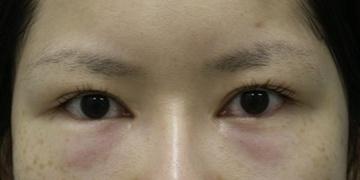 目白ポセンシアクリニックの目元整形・クマ治療の症例写真[ビフォー]