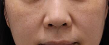 ヴィンテージビューティークリニック横浜のシミ治療(シミ取り)・肝斑・毛穴治療の症例写真[アフター]
