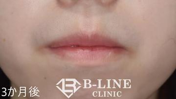 B-LINE CLINIC (ビーラインクリニック)の口もと、唇の整形の症例写真[アフター]