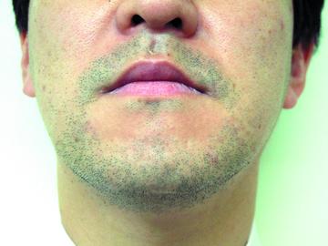 シロノクリニック恵比寿の医療レーザー脱毛の症例写真[ビフォー]