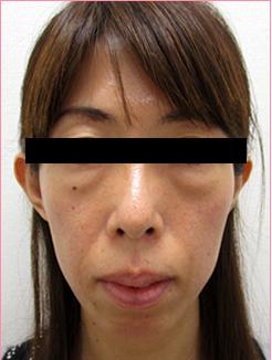 ■経結膜脱脂の症例写真[ビフォー]