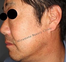 みやもと美容クリニックのホクロ除去・あざ治療・イボ治療の症例写真[アフター]