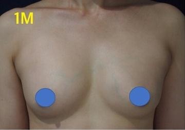S.T style クリニック(エスティスタイルクリニック)の豊胸手術(胸の整形)の症例写真[アフター]