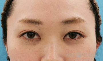 エースクリニック 名古屋院の目元整形・クマ治療の症例写真[アフター]