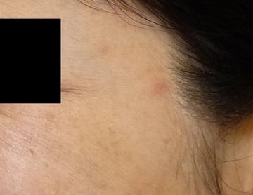 さやか美容クリニック・町田の目元整形・クマ治療の症例写真[アフター]