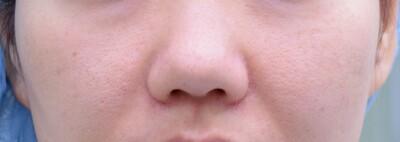 鼻尖形成術+耳介軟骨移植術 静脈麻酔併用の症例写真[ビフォー]