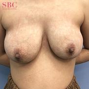 湘南美容クリニック高松院の豊胸手術(胸の整形)の症例写真[アフター]