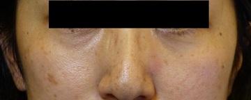 さやか美容クリニック・町田の目元の整形、くま治療の症例写真[アフター]