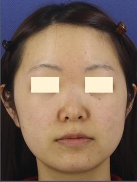 プロテーゼ・鼻中隔延長(肋軟骨) 術後1ヶ月の症例写真[ビフォー]