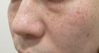 エルクリニックのシミ治療(シミ取り)・肝斑・毛穴治療の症例写真[ビフォー]