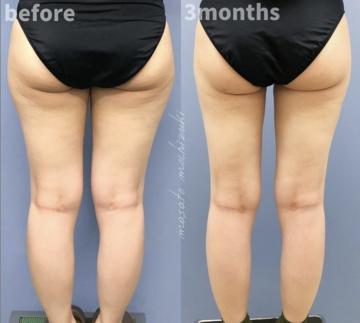 湘南美容クリニック 金沢院の脂肪吸引の症例写真