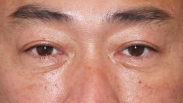 ウィクリニック 大宮院の目元整形・クマ治療の症例写真[アフター]
