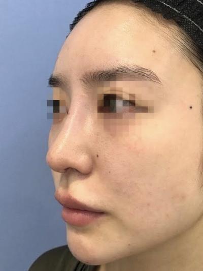 鉄医師による鼻の複合手術の症例写真[アフター]