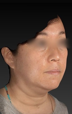 CZEN GINZA CLINIC (シゼン ギンザ クリニック)のリフトアップレーザーの症例写真[ビフォー]