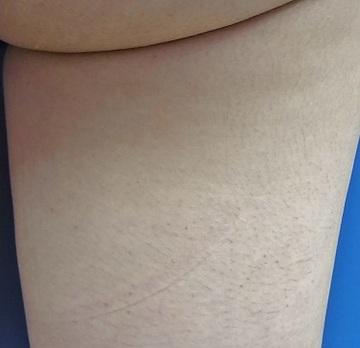 心斎橋フェミークリニックの医療レーザー脱毛の症例写真[ビフォー]