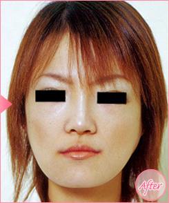 城本クリニックの顔の整形(輪郭・顎の整形)の症例写真[アフター]