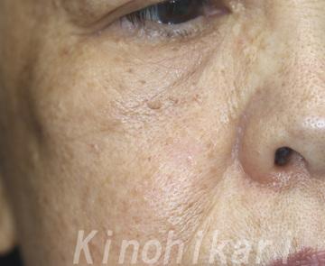 樹のひかり 形成外科・皮ふ科のほくろ除去・あざ治療・イボ治療の症例写真[アフター]