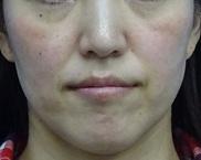 東京中央美容外科・美容皮膚科の目元の整形、くま治療の症例写真[ビフォー]