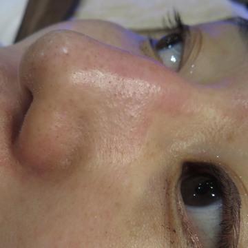 東京八丁堀皮膚科・形成外科のシミ治療(シミ取り)・肝斑・毛穴治療の症例写真[アフター]