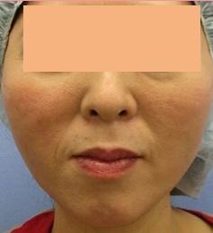 城本クリニックの顔のしわ・たるみの整形(リフトアップ手術)の症例写真[アフター]
