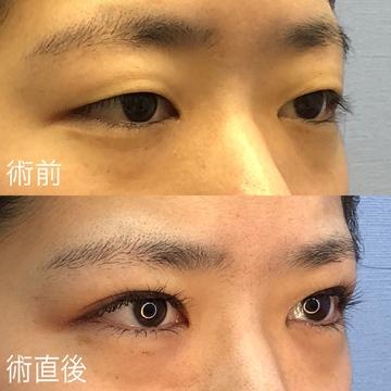 湘南美容クリニック 湘南藤沢院の目・二重の整形の症例写真
