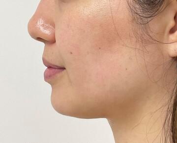東京美容外科 沖縄院の輪郭・顎の整形の症例写真[ビフォー]