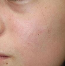 タウン形成外科クリニックの傷跡治療、ケロイドの症例写真[アフター]