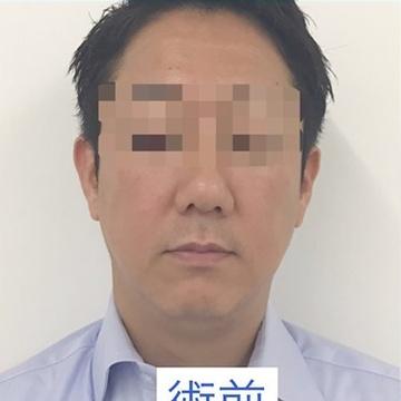 東郷美容形成外科福岡の顔の整形(輪郭・顎の整形)の症例写真[ビフォー]
