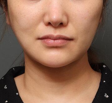 オザキクリニック LUXE新宿の脂肪吸引の症例写真[アフター]