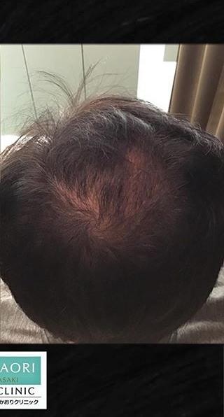 皮フ科 かわさきかおりクリニックの薄毛治療の症例写真[アフター]