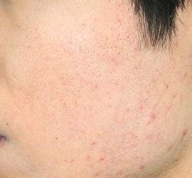 オザキクリニック LUXE新宿のニキビ治療・ニキビ跡の治療の症例写真[アフター]