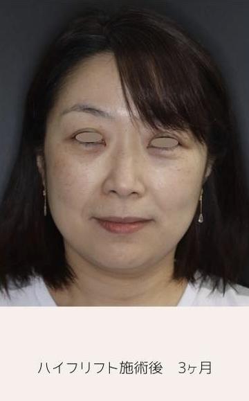 レア形成外科・美容皮膚科のリフトアップレーザーの症例写真[アフター]