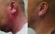 ティアラクリニック川越院のピアス穴あけの症例写真