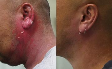 ティアラクリニック 川越院のピアス穴あけの症例写真