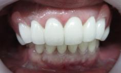 入れ歯治療の症例写真の症例写真[アフター]