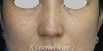 樹のひかり 形成外科・皮ふ科のシミ取り・肝斑・毛穴治療の症例写真[ビフォー]