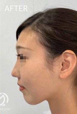 GLANZ CLINIC(グランツクリニック)の鼻の整形の症例写真[アフター]