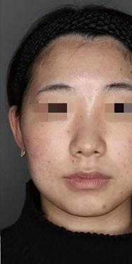 SELECT CLINIC(セレクトクリニック)のニキビ・ニキビ跡の治療の症例写真[アフター]