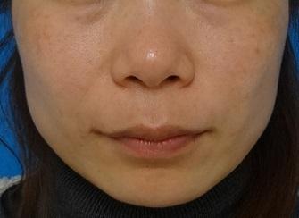 TCB東京中央美容外科のその他の美容整形の症例写真[アフター]