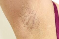 佐井泌尿器科・皮フ科クリニックの医療レーザー脱毛の症例写真[ビフォー]