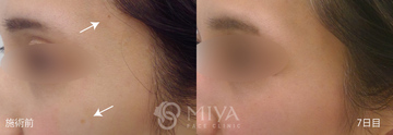 MIYAフェイスクリニックのシミ治療(シミ取り)・肝斑・毛穴治療の症例写真