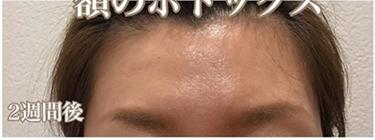 額のボトックスの症例写真[アフター]