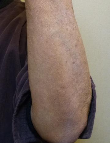 のシミ取り・肝斑・毛穴治療の症例写真[アフター]