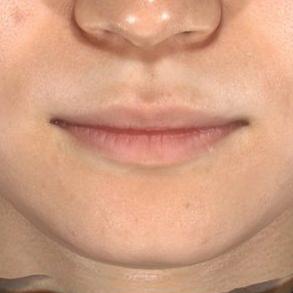肌と歯のクリニック 東京ベイ幕張のホクロ除去・あざ治療・イボ治療の症例写真[アフター]