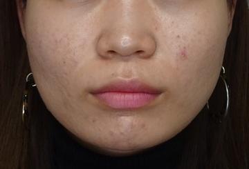 TCB東京中央美容外科の輪郭・顎の整形の症例写真[アフター]