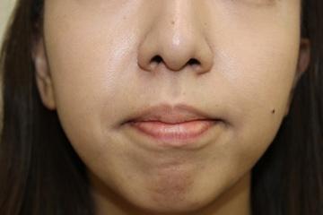 タウン形成外科クリニックの顔のしわ・たるみの整形の症例写真[アフター]