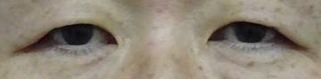 TCB東京中央美容外科の目・二重の整形の症例写真[ビフォー]